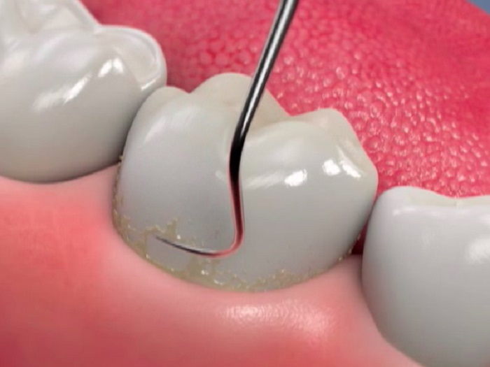 Удаление зубного камя, цена. Удаление зубного камня под деснами.