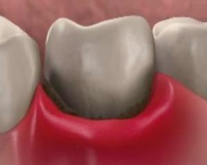 Почему болят десна с зубами?